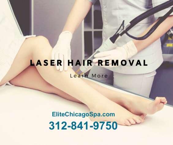 Brazilian laser hair removal in chicago