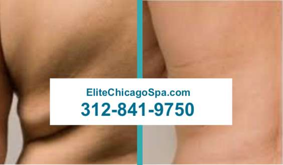 Coolsculpting in chicago illinois
